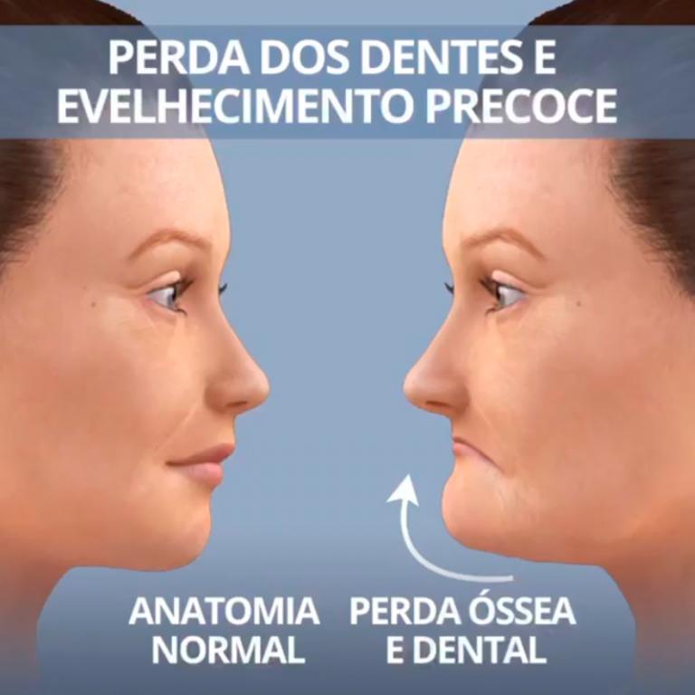 Perda dos dentes e envelhecimento precoce